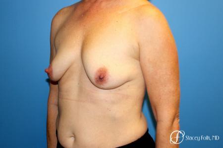 Denver Breast Augmentation Mastopexy 8163 - Before Image 2