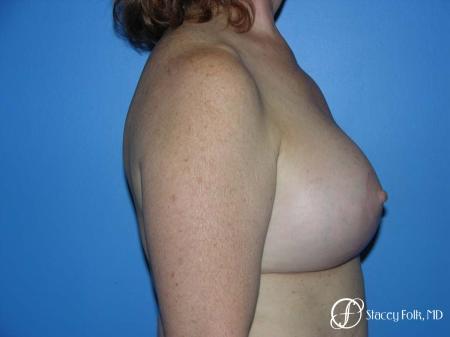 Denver Breast Lift - Mastopexy 7977 -  After Image 3