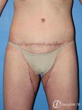 Denver Body Lift Belt lipectomy 5268 - After Image