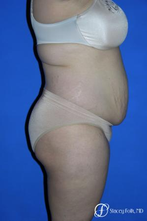 Denver Mommy makeover, breast reduction, abdominoplasty and liposuction 5353 - Before and After Image 3