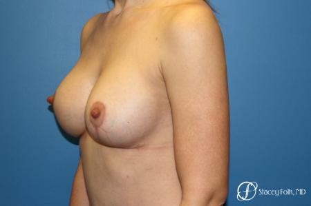 Denver Breast lift and Augmentation 7850 -  After Image 2