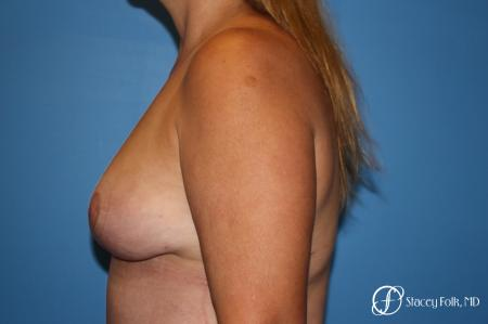 Denver Fat Transfer Breast Lift Mastopexy with Fat Transfer to the Breast 6920 -  After Image 3