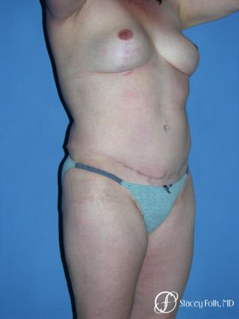 Denver Mommy makeover, breast reduction, abdominoplasty, liposuction 5355 -  After Image 2