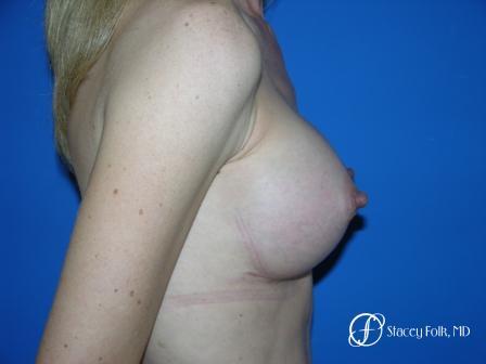Denver Breast Augmentation 8 -  After Image 3