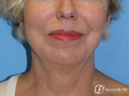 Denver Facial Rejuvenation Facelift, Fat Transfer, and Laser Resurfacing 8513 -  After Image 3