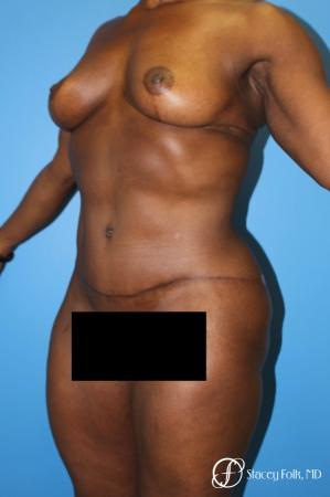 Denver Breast Lift - Mastopexy, and Tummy Tuck - Abdominoplasty 7512 -  After Image 2