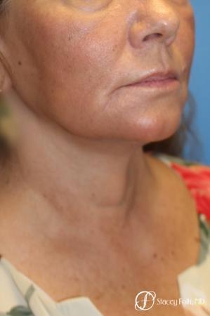 Denver Facial Rejuvenation Face Lift, Fat Injection, Laser Resurfacing 7123 -  After Image 2