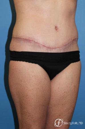 Denver Tummy Tuck 4817 -  After Image 2