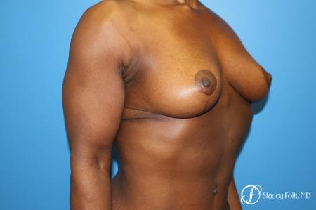 Denver Breast Reduction (Mastopexy) 7081 -  After Image 2