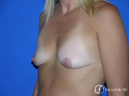 Denver Breast Lift and Augmentation 4558 - Before Image 2