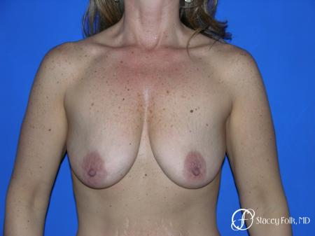 Denver Breast Lift and Augmentation 4560 - Before Image