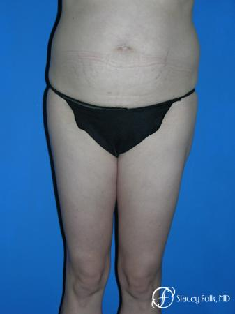 Denver Liposuction 3527 - Before Image