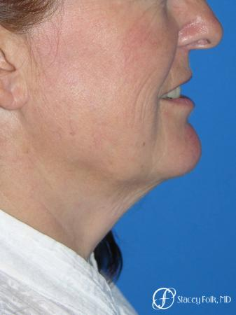 Denver Facial Rejuvenation Face lift, Fat Injections, Laser Resurfacing 7133 - Before Image