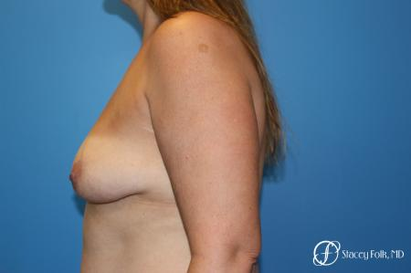 Denver Fat Transfer Breast Lift Mastopexy with Fat Transfer to the Breast 6920 - Before and After Image 3