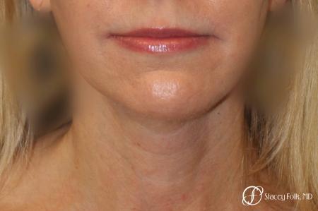 Denver Facial Rejuvenation Face Lift and Fat Injections 7126 -  After Image 3