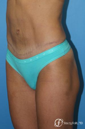 Denver Tummy Tuck - Abdominoplasty 8299 -  After Image 2