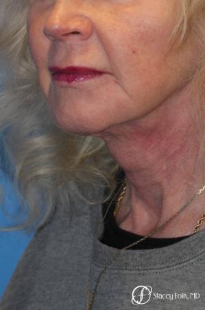 Denver Facial Rejuvenation Face lift, Fat Injections, and Laser Resurfacing 7131 -  After Image 2