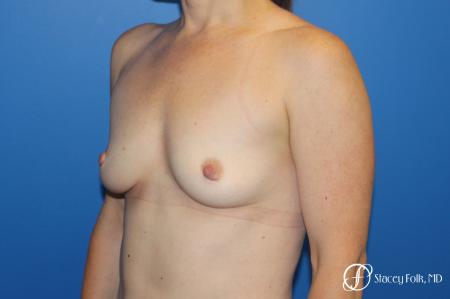 Breast augmentation with Natrelle Inspira breast implants - Before Image 4