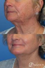 Denver Laser Skin Resurfacing Face 10665 - After Image