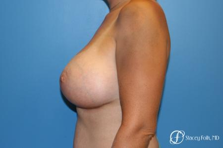 Denver Breast augmentation using textured implants 8271 -  After Image 2