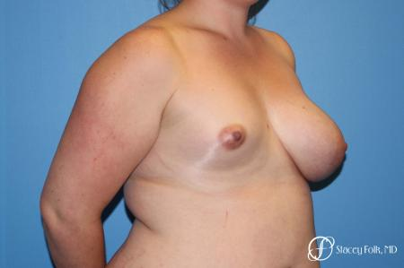 Fat Transfer To Right Breast - Before Image 2