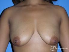 Denver Breast augmentation mastopexy 4815 - Before Image