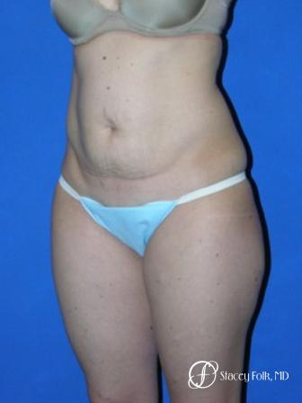 Denver Tummy Tuck 35 - Before Image 2