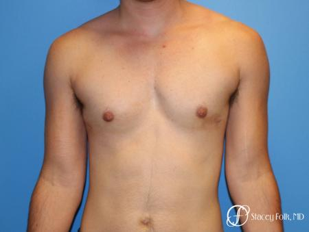 Denver FTM female to male top surgery using gynecomastia technique 5128 - After Image