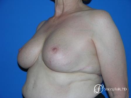 Denver Breast Reduction 37 -  After Image 2