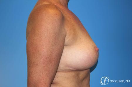 Denver Breast Revision 8543 -  After Image 3