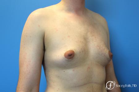 Denver FTM Female to Male Top Surgery 7708 - Before Image 2