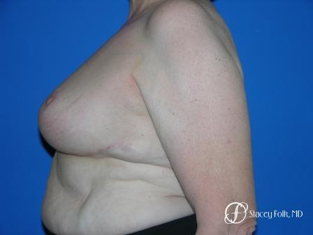 Denver Breast Reduction 37 -  After Image 3