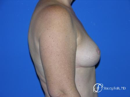 Denver Breast Reduction 36 -  After Image 3
