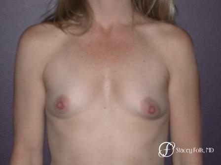 Denver Breast Augmentation 959 - Before Image 1