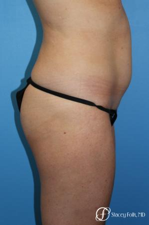 Denver Tummy Tuck - Abdominoplasty 7713 - Before and After Image 3