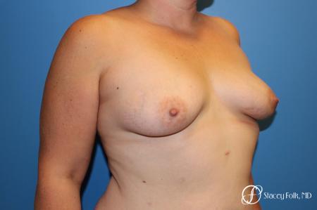 Denver Breast Augmentation Mastopexy 8507 - Before Image 3