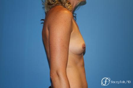 Denver Breast augmentation 4740 - Before Image 4