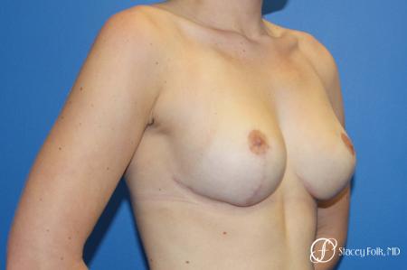Denver Breast Lift - Mastopexy 10021 -  After Image 4