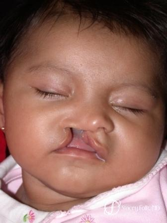 Denver Cleft Lip and Palate Repair 966 - Before Image