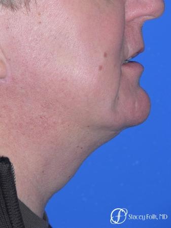 Denver Facial Rejuvenation Face lift, and Fat injections 7157 -  After Image 2