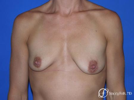 Denver Breast augmentation and breast lift (Mastopexy) 10091 - Before Image 1