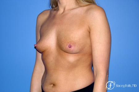 Denver Breast Augmentation 3626 - Before Image 2
