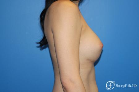 MTF (Male To Female Top Surgery) Breast Augmentation -  After Image 3