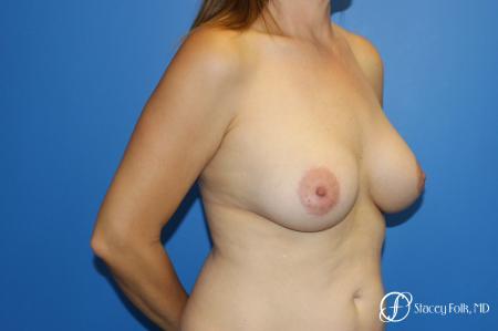 Fat Transfer Breast Lift (Mastopexy) - Before Image 2