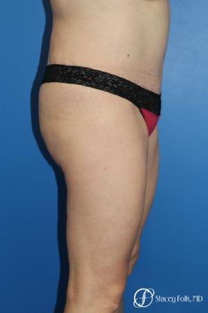 Denver Tummy Tuck (Abdominoplasty) and liposuction 10371 -  After Image 3