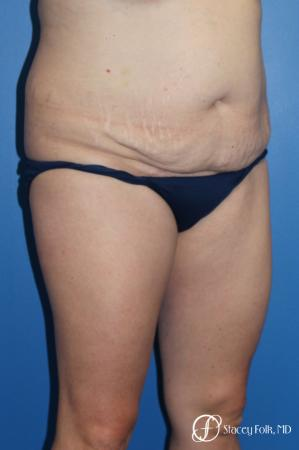 Denver Tummy Tuck (Abdominoplasty) and liposuction 10371 - Before Image 2