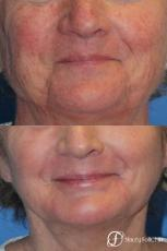 Denver Laser Skin Resurfacing Face 10665 - Before Image