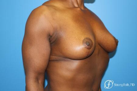 Denver Breast Lift - Mastopexy 7509 -  After Image 2
