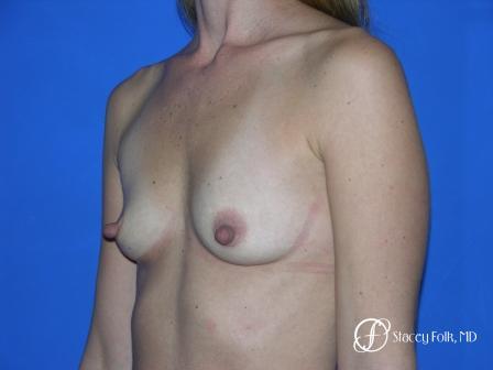 Denver Breast Augmentation 26 - Before Image 2