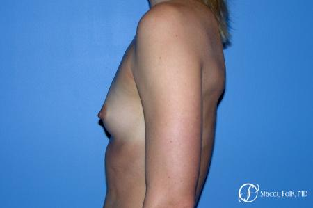 Denver Breast Augmentation 8202 - Before and After Image 3